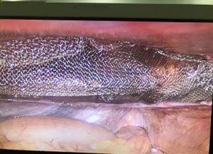 Phẫu thuật thành công tán sỏi mật bằng ống nội soi mềm, cắt gan trái do sỏi đường mật tại TTYT Thanh Thủy
