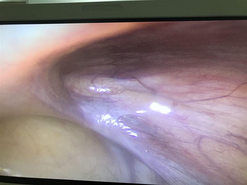 TTYT huyện Thanh Thủy phẫu thuật nội soi điều trị bệnh lý thoát vị bẹn bằng phương pháp TEP